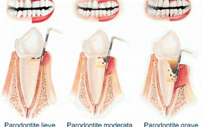 Le cause che portano alla piorrea e alla parodontite